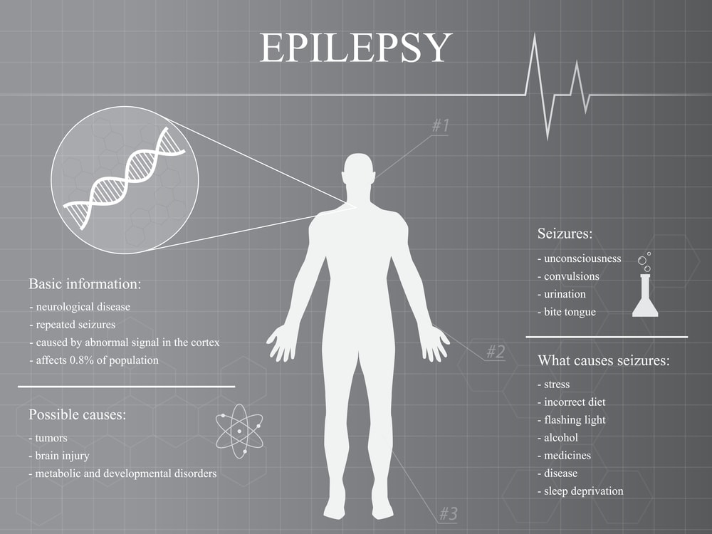 Epilepsy Disease Infographic Man