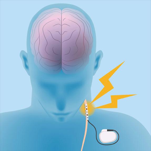 Human Brain Vagus Nerve Stimulation VNS Image Illustration